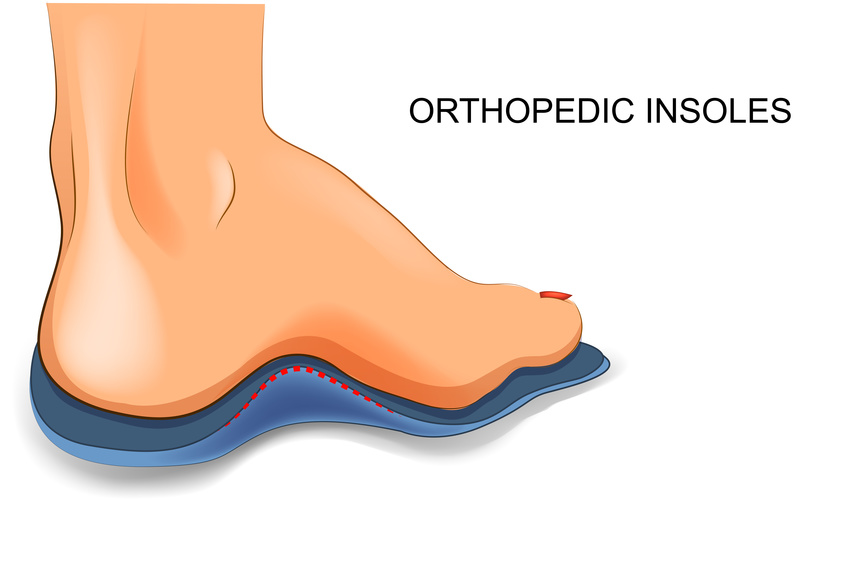 When do I Need Orthotics?