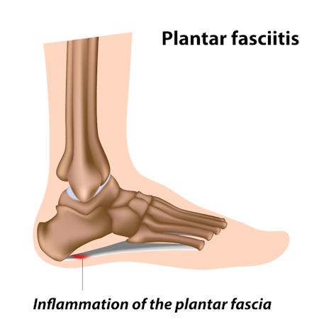 Plantar-Fascitis
