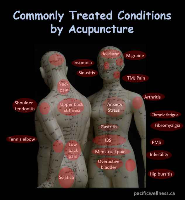Acupuncture is commonly used for painful conditions