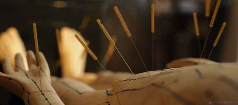 Toronto's premier destination for acupuncture